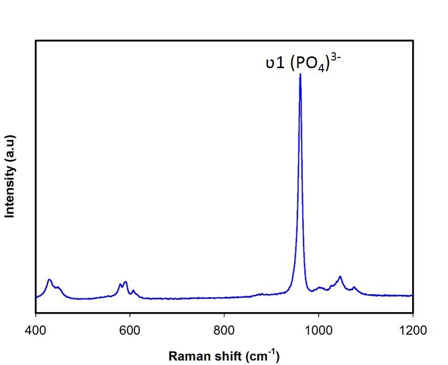 Raman spectrum of Hydroxyapatite nanoparticles.
